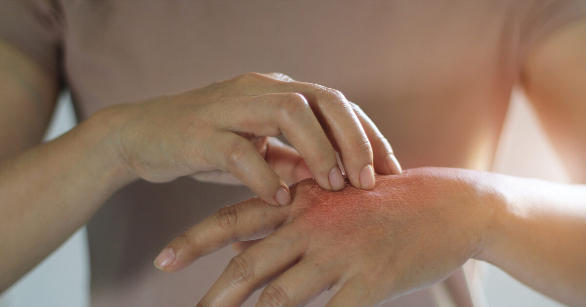 Covid e malattie dermatologiche