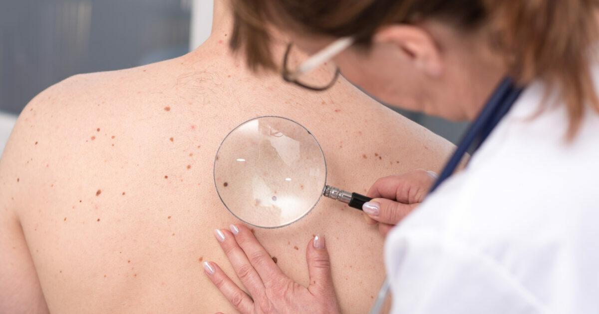 Diagnosi dei melanomi