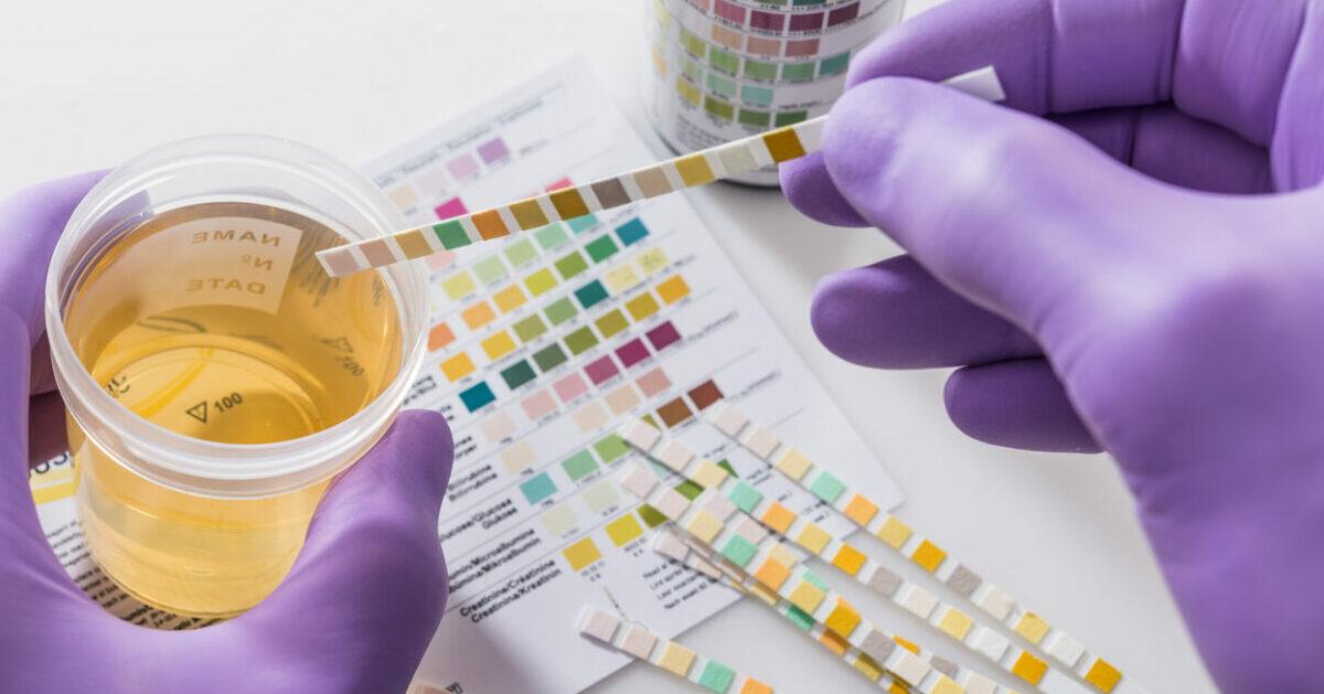Test delle urine
