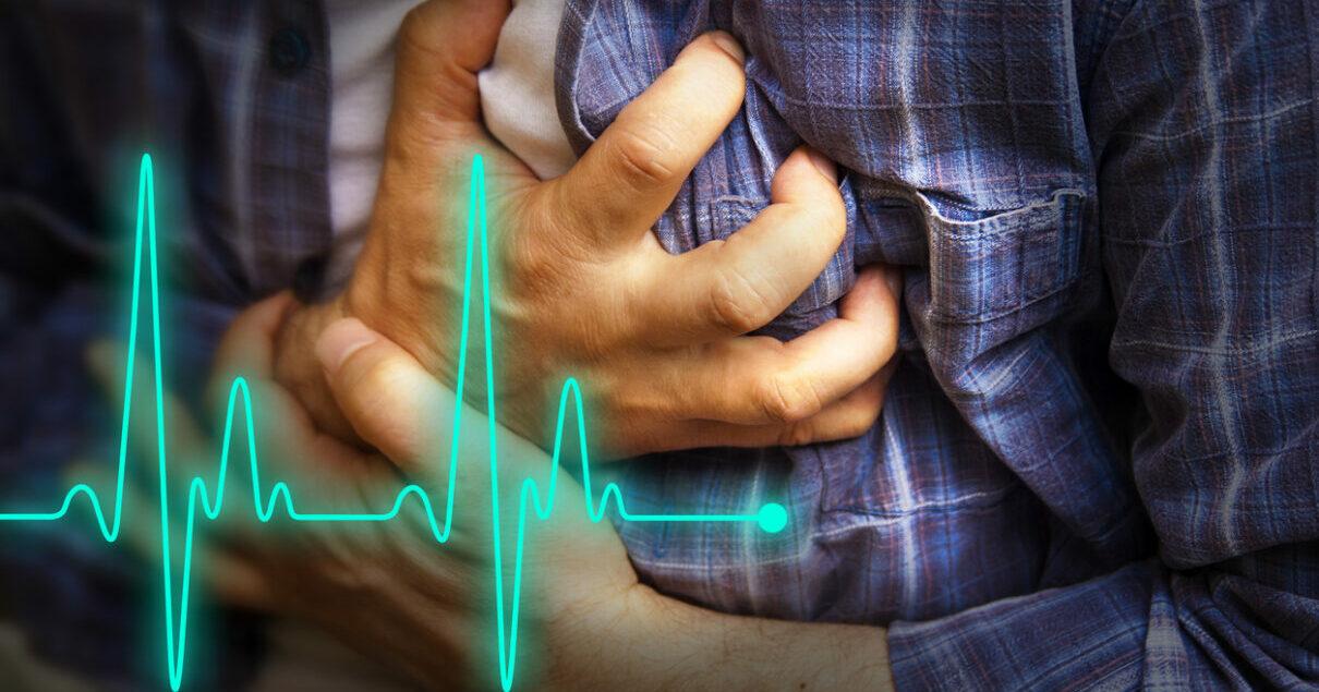 Le linee guida per l'infarto