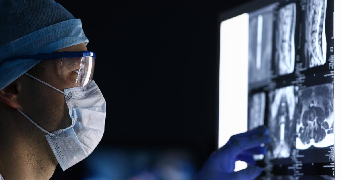 Tomografia PET/CT è una tecnica diagnostica di medicina nucleare in grado di restituire immagini dettagliate del corpo umano.