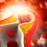 Colesterolo cattivo, il nemico della salute da combattere