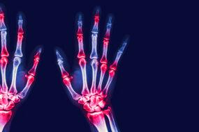 Malattie reumatologiche, dal 1984 APMARR è al fianco delle persone