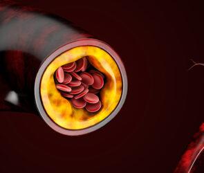 Il colesterolo cattivo si combatte con alimentazione sana e attività fisica
