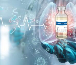 Nuovo studio per sviluppare un vaccino contro la tubercolosi